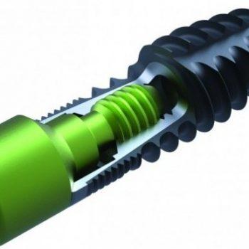 Implanturi QZA